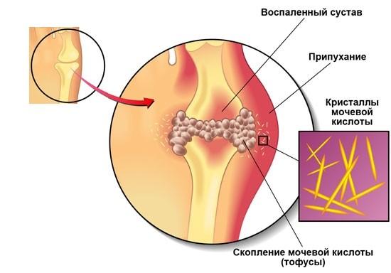 Vasaku harja liigese poletik Parimad salvid liigeste haigustele