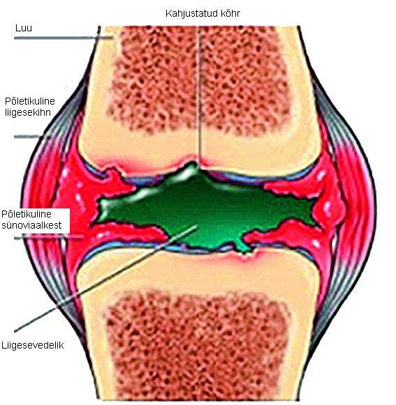 Arkoxia liigeste haigus