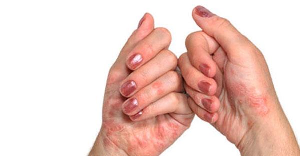 Artriidi artriit sormedel