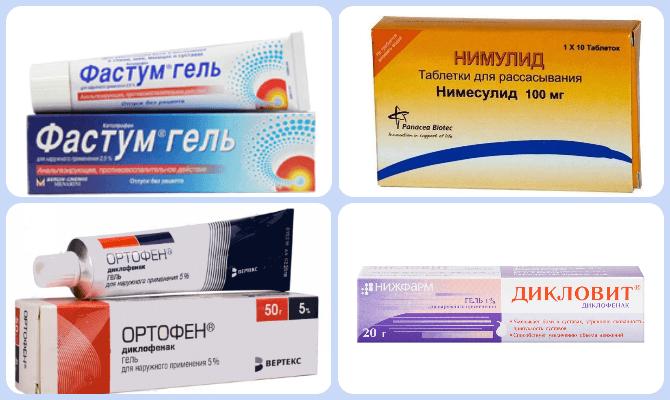 Artriidi artroosi rahvaste ravimite ravi HEEL Liigeste ravi