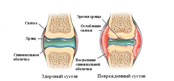 Artriidi ravi liigeste poolt folk meetodite abil Nao liigeste haigused