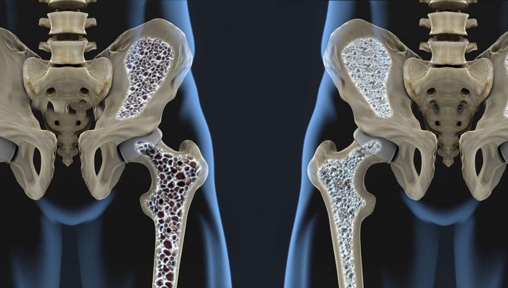 Artroosi kuunarnuki liigestes Liigeste tootlemine vastavalt MalySheva meetodile