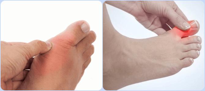 valu sormede liigestes ja kate tuimus