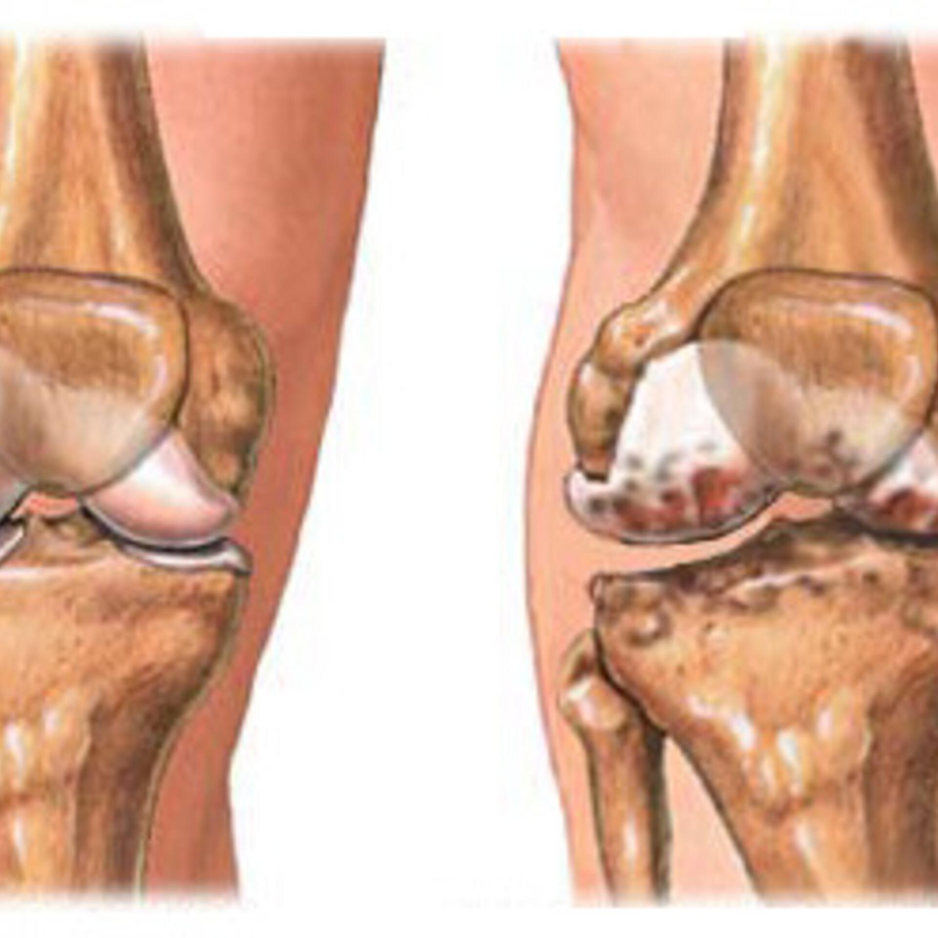 Patsientide ravi liigeste haigustega salv poordeliigese artroosiga