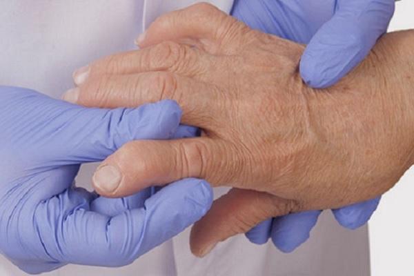Glukoosamiini kondroitiini geeli kompositsioon valutab vasakpoolse suure sormega liigese