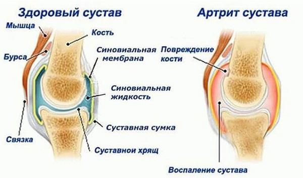 Mida peate tegema, kui liigesed on haiged Valu kuunarnuki liigeses pohjustab artroosi ravi