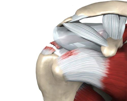 Artroosi kolmanda astme ravi Artrosi kaela reie ravi