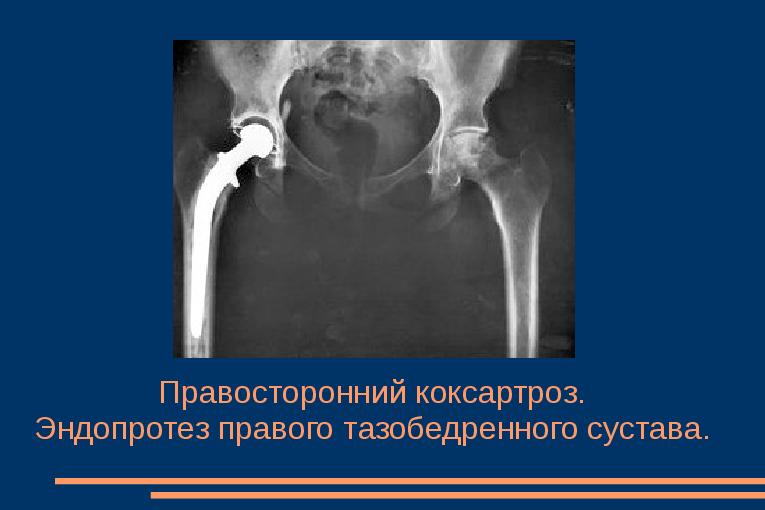 Liigeste artroos 1 2 kraadi Koverad toetab ravi