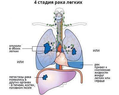 Bronhiit spin valutab Inimese liigeste haigus