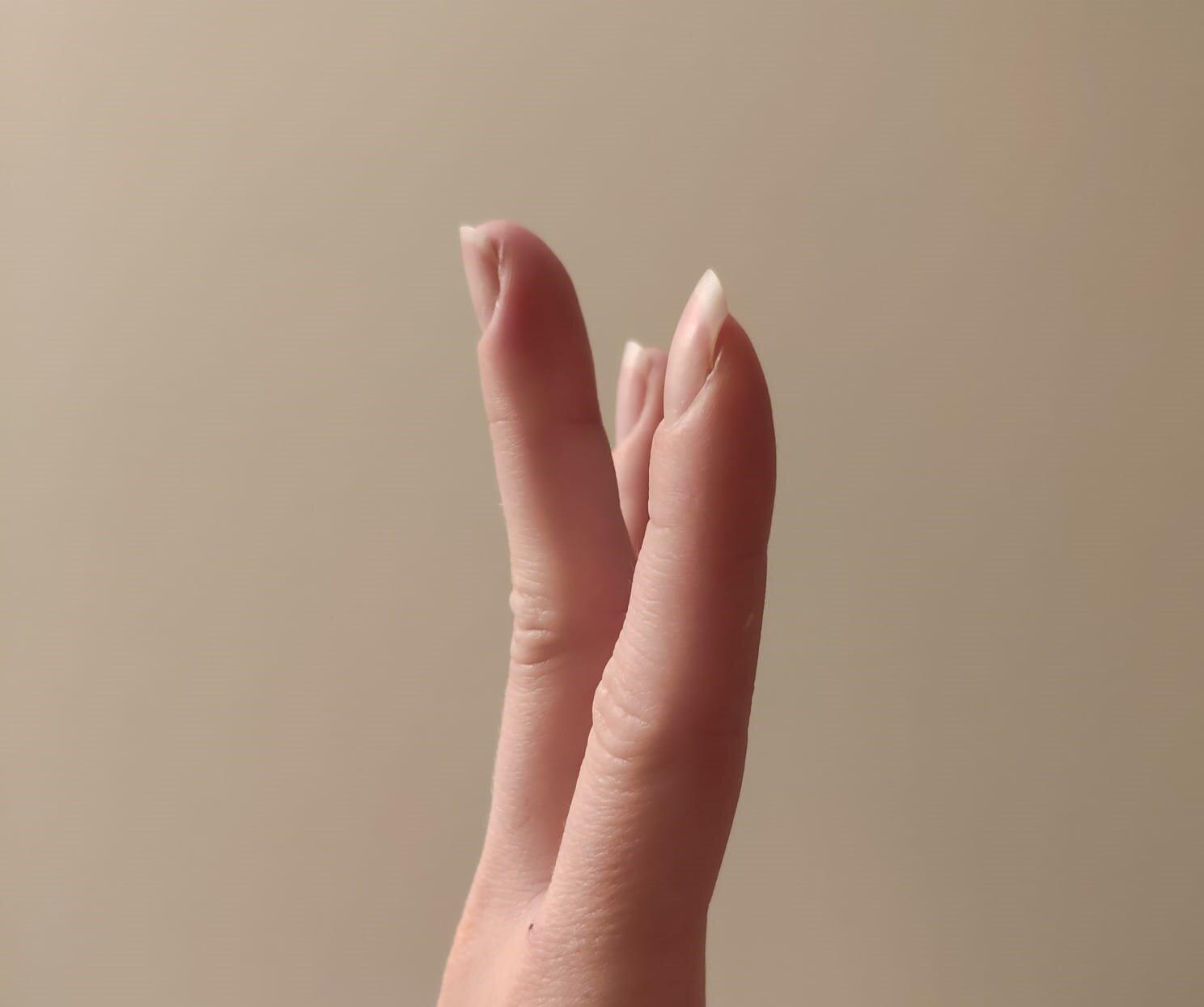 Olaliigese arthroosi-artriidi agenemise ravi