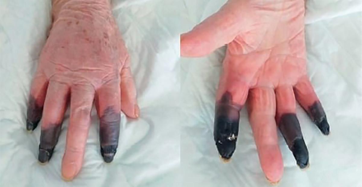 Naise haigus sormega