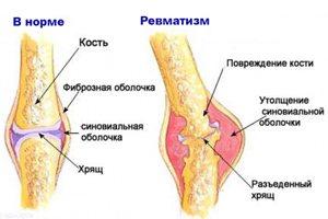 Solvestab haiguse valus Uhise haiguse test