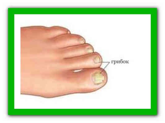 Artroosi mazi geelid raviks
