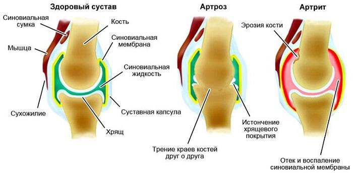 crunches liigesed vasakul olal ja valutab valu ja liigestes