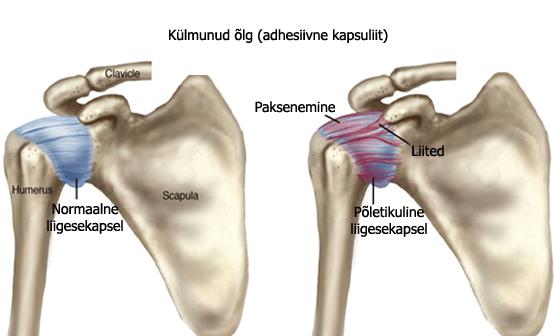 Mida meeldivad liigesed artroosiga Mis on artroosi artroosi liigese