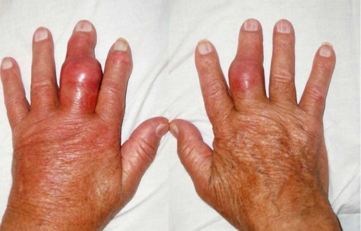 Parema kae harja valus liigesed Artriit 5 sormede harja