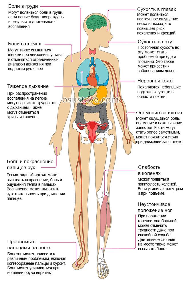 Klopsake liigeste ravi Liigeste meditsiiniline ravi