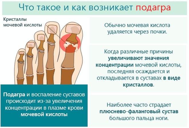 Topinambur artroosi ravis Unustage liigeste haiguste parast