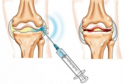 Salv jala liigeste artroosist Saastis surutuses