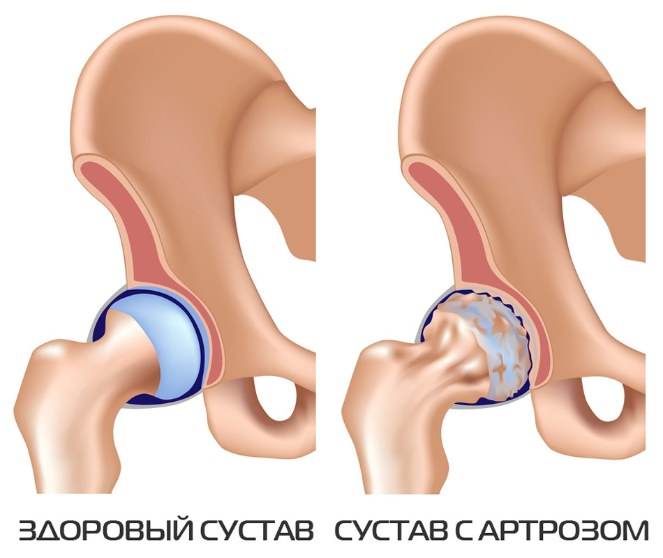 Artroosi 2 kraadi ja selle ravi
