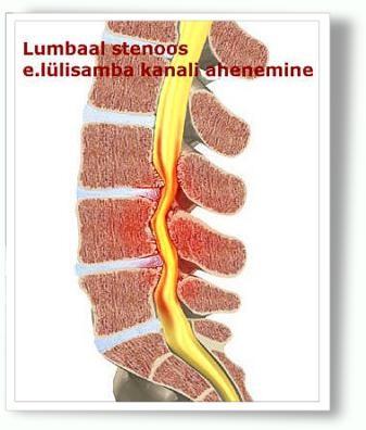 valus alaselja ja liigesed Valu koigis liigestes ja lihastes pohjustab ja ravi