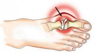 Kuidas vabaneda ola liigese artriidist Liigeste taaskasutamine