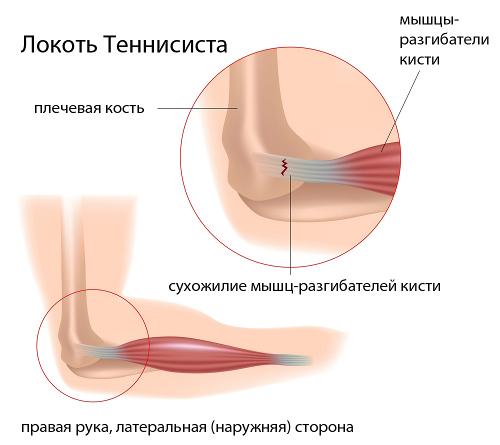Vasaku ola artroos sailitab 1 kraadi