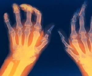 Liigestes esineb artriidi ajal