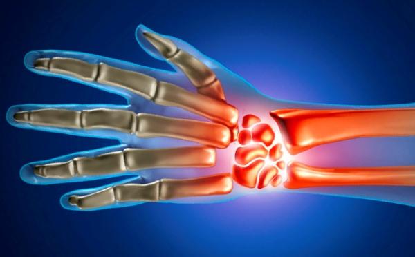 Artriidi artroos sormedel paisub ja valutab