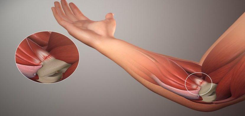 Artroosi ravi verevalumites Liigeste artroos peatu