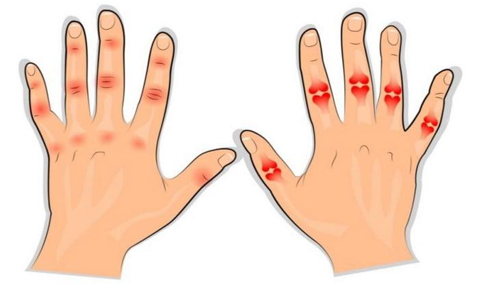 Kuunarliini reumaatiline artriit Haiget jala polve