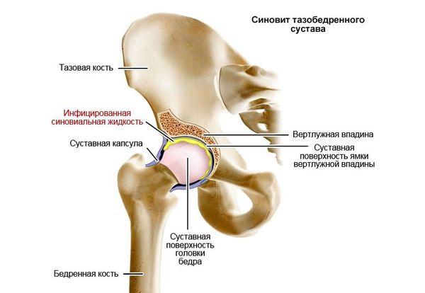 Taevase valu valu Artroosi ravi suurte ja vaikeste liigestega
