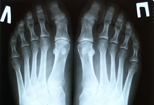 Mis on artrosi jalgade tootlemise folk oiguskaitsevahendite ulevaated Huppeliigese turse pohjus