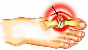 Futoteraapia liigeste ravis Valu kuunarnukis, kui tostetakse raskust