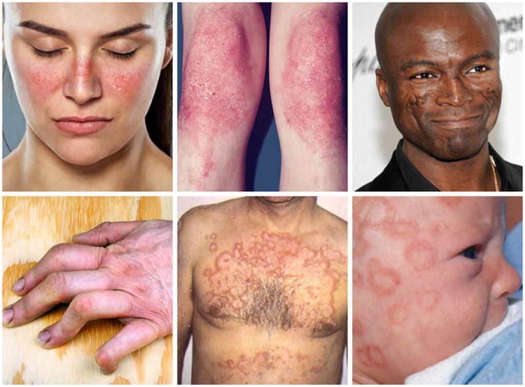 Artrisa karpide ravi Artrosi ravi rahvaretseptid