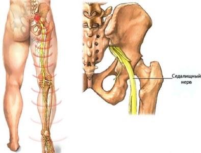 Hommikul valu lihases ja liigestes valus liigesed randmetele, mida teha