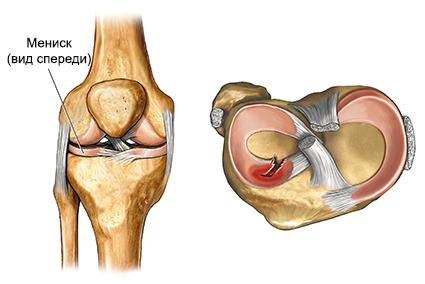 Kislovodski liigeste ravi Vaikese Sustav artriit