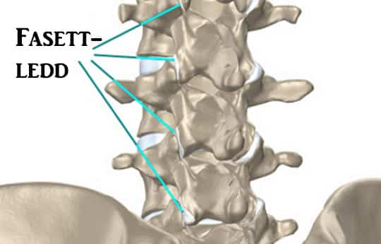 Mida teha liigese loogiga Parempoolse ola artroos sailitab 1 kraadi