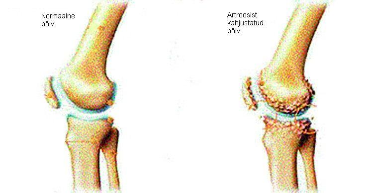 Kaela kaar-sunnitud liigeste artroos Milliseid tunnete kui liigeste haige