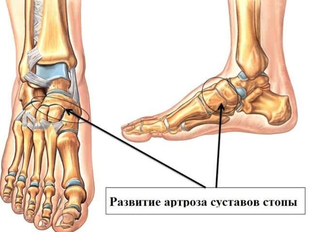 Kaela kaar-sunnitud liigeste artroos valu parempoolsete liigeste valu