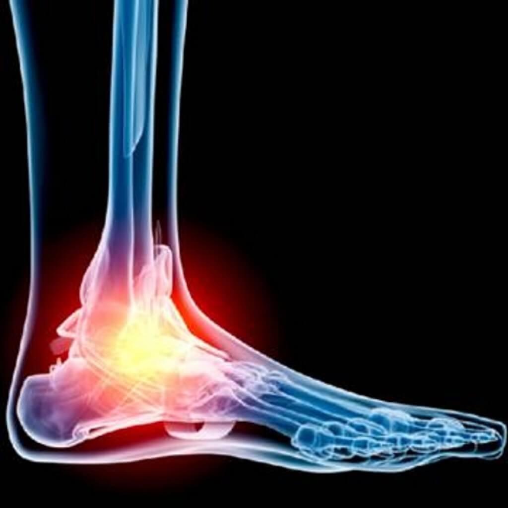 Keskmise liigese jala artroos Kuidas vabaneda liigesevalu igavesti