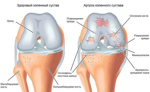 Klopsake liigeste ravi Osteokondroosi koor ja geelid