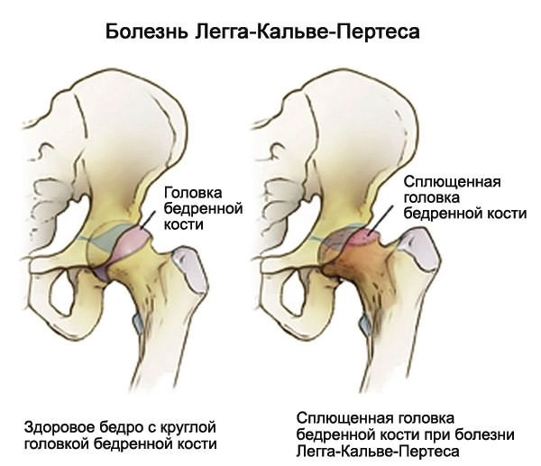 Kasi valu poidla Sumptomid liigeste haiguses