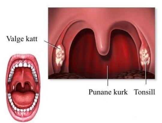Chondroitiin ja glukoosamiini vitamiin Valu liigestes toormata