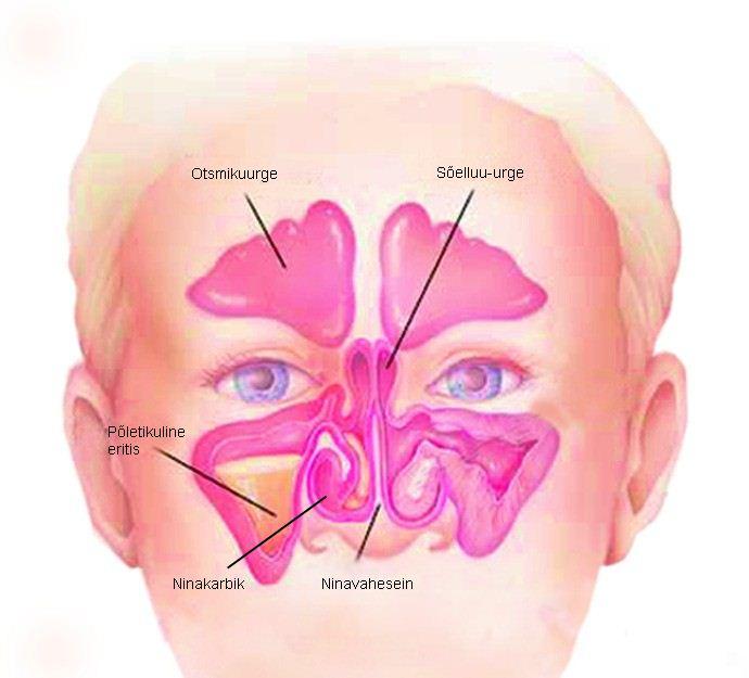 Kuidas eemaldada poletiku poletiku artroosis Salv citralgin liigestest