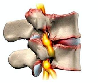 Pillid liigeste kommentaare poletikutest Olaliigese arthroosi-artriidi agenemise ravi