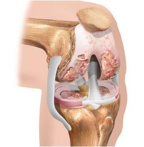 Kury liigeste haigused Higi liigeste ja ravi