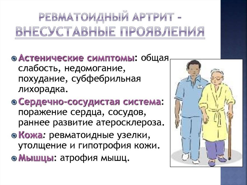 Liigeste haiguste klassifikatsioon Pintsli sees on valus