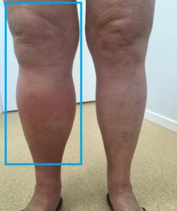 Liigeste ja jalgade turse Artriidi haavandid liigestele