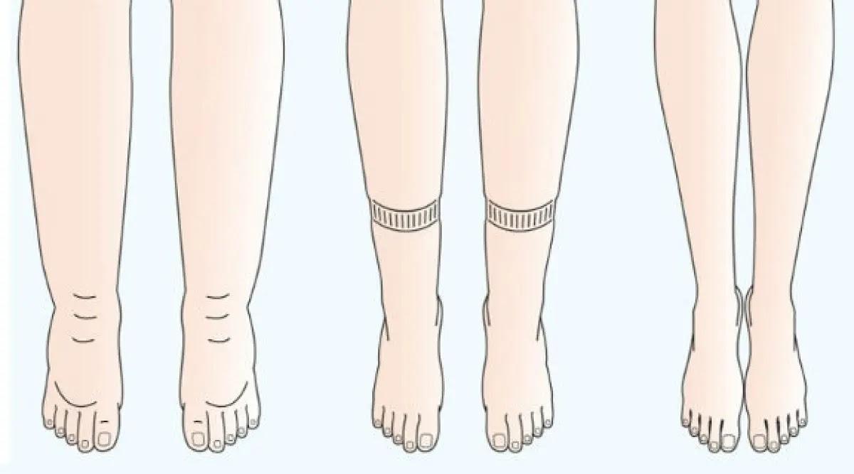 Liigeste ja jalgade turse kuunarnuki salv